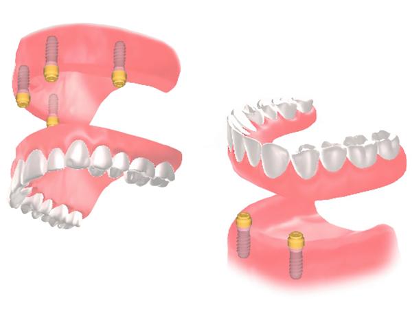 「インプラント+入れ歯」のインプラントオーバーデンチャー