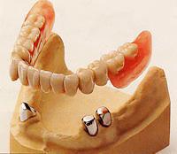ドイツ生まれの安定性に優れたコーヌスクローネ義歯