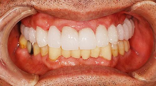 ワックスアップ模型や仮歯によるイメージのすり合わせ